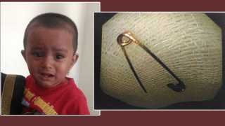 doctor remove safety pin in 11 month child stomach