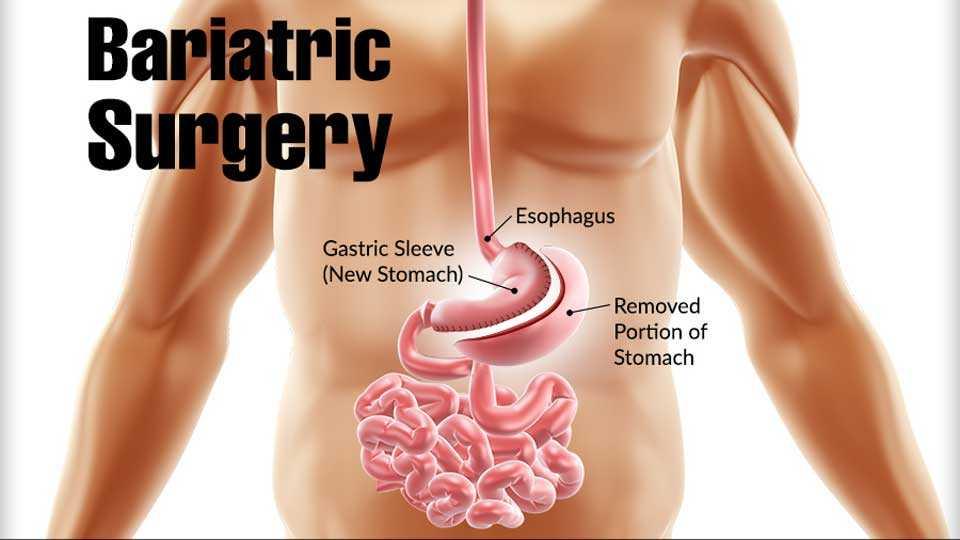 Bbariatric-Surgery