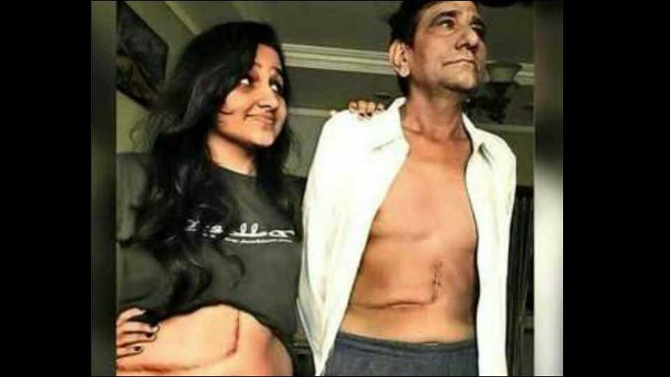 Pooja Brijania gives liver to father