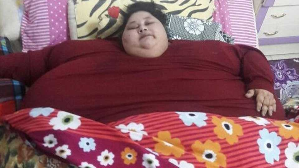 Eman Ahmed's weight halves in 2 months, she has lost 242kg, says doctor (file photo)