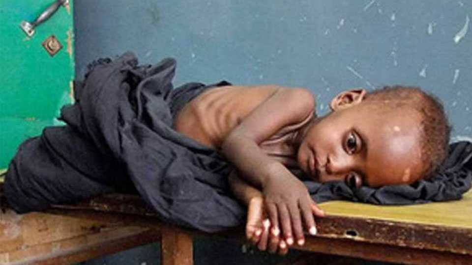 malnutrician